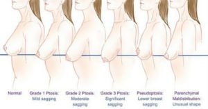 breast-augmentation-candidate-breast-sag-image